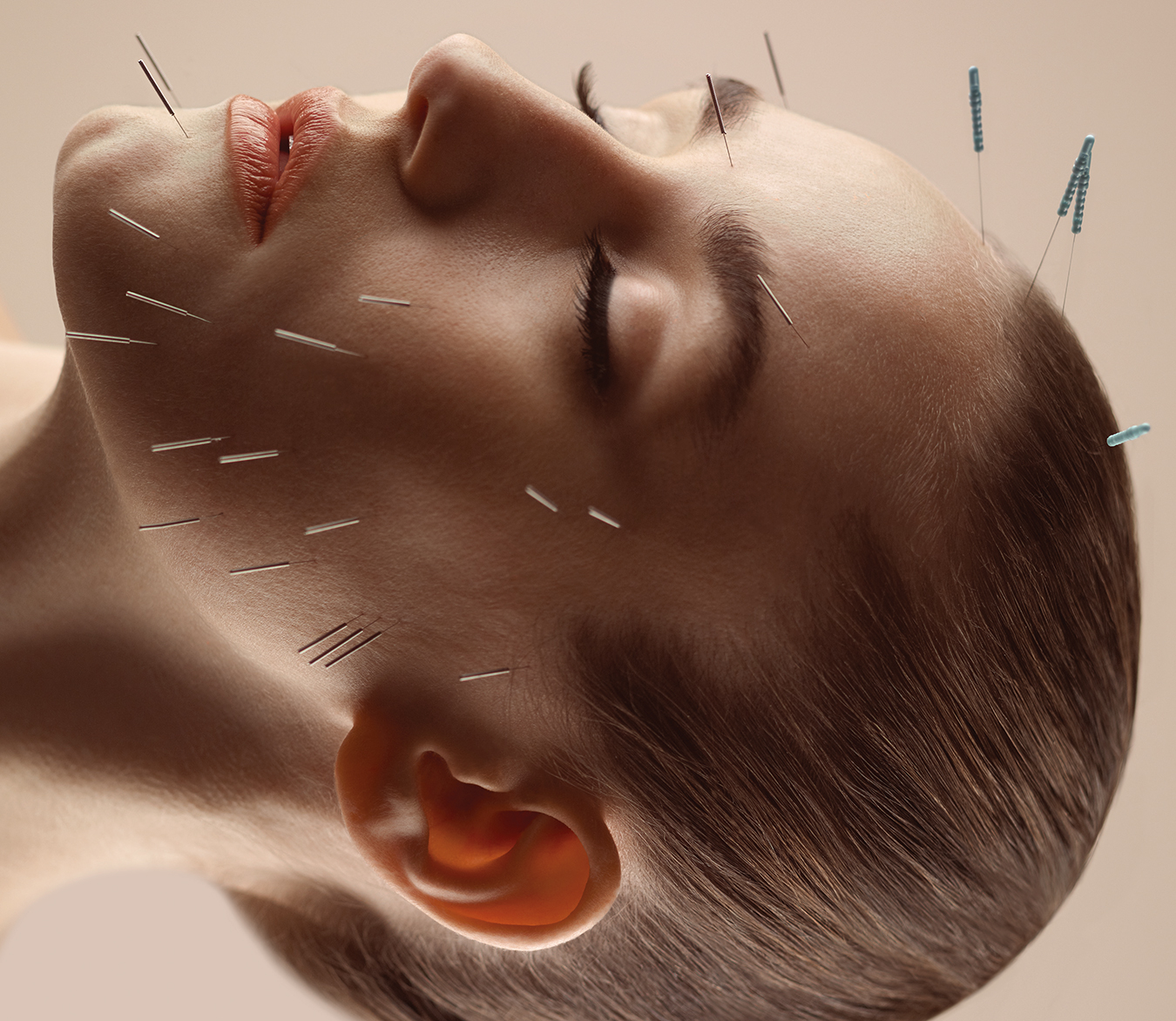NUVO Magazine: Cosmetic Acupuncture