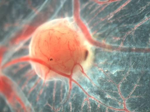 New Hope Cancer Treatment, Inquiring Minds, Winter 2017